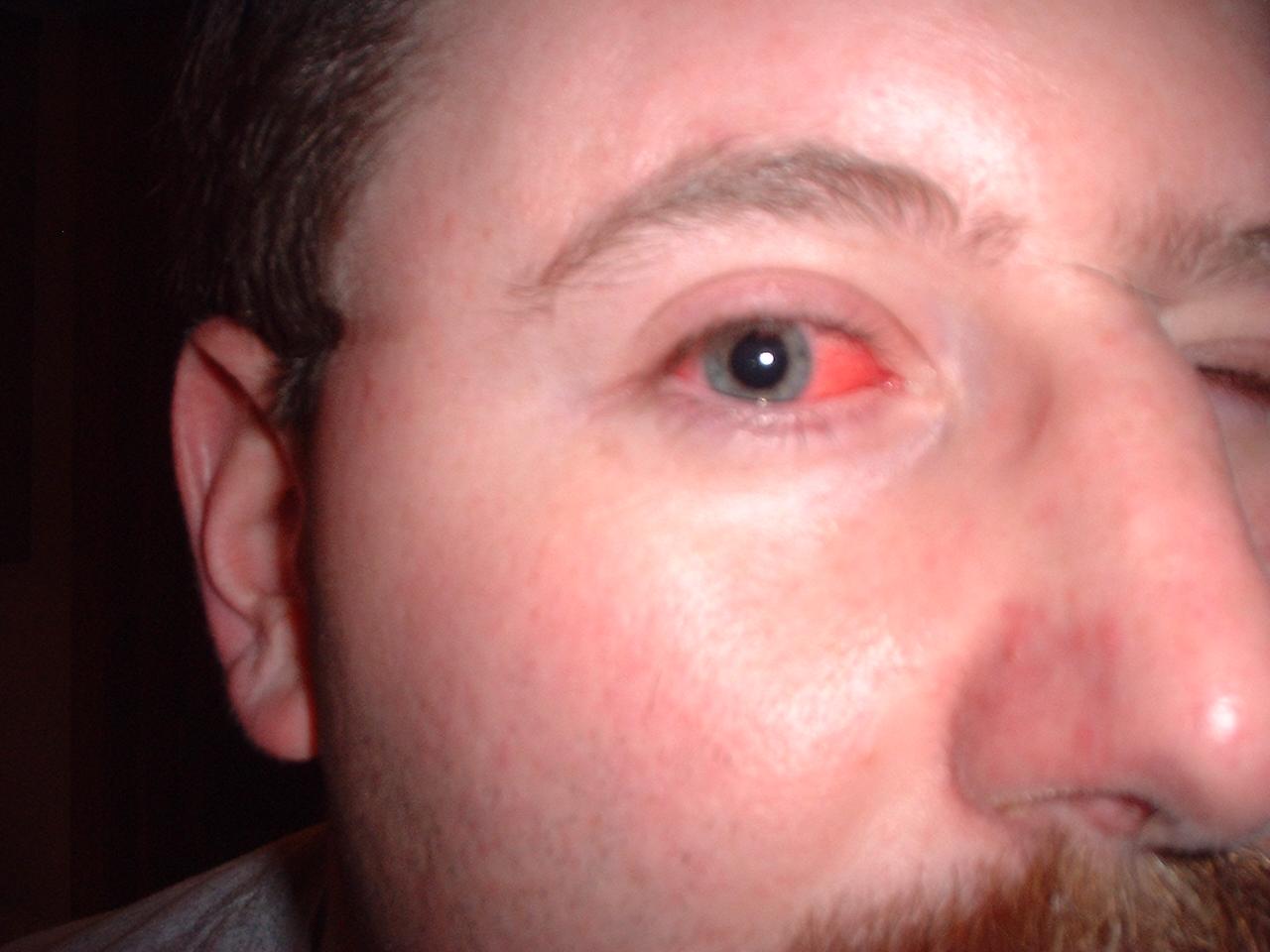 Album: andys evil eye
